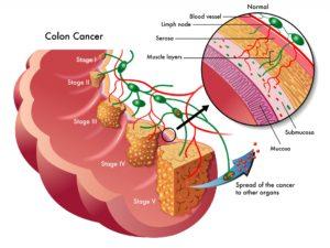 colon-cancer