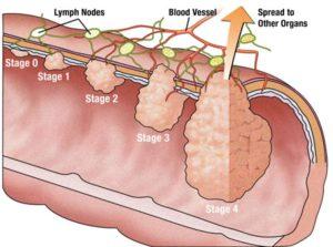 rectom cancer
