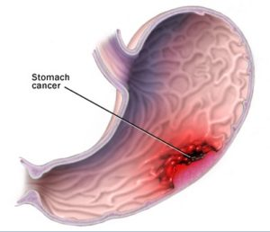 stomach-cancer-tumor